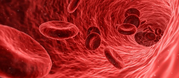 High Blood Cholesterol: What to know and how to prevent it?