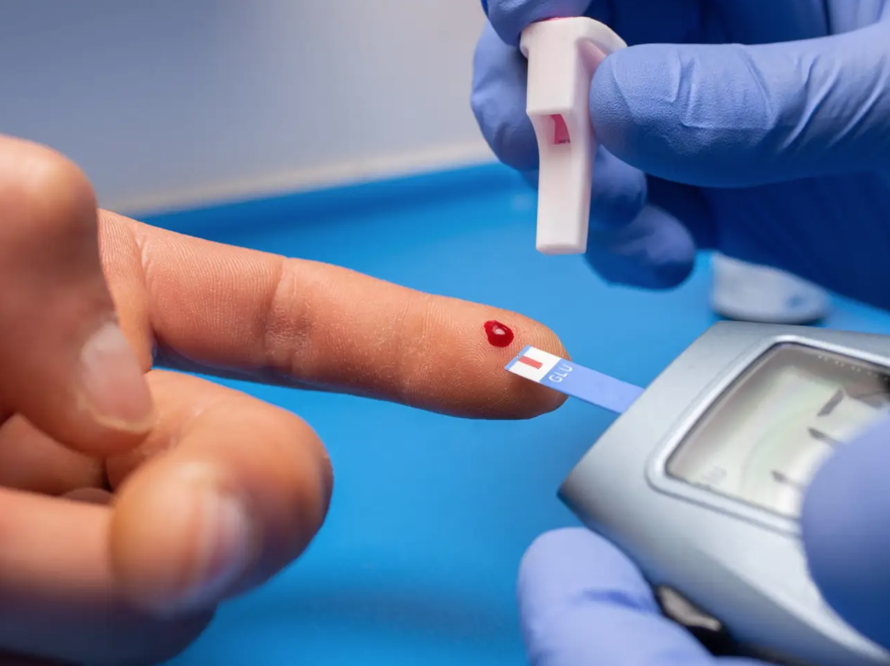 Diabetes after COVID-19 could be virus messing with Pancreas: Research - Published in Business Insider Nov 6, 2021